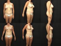 Breast Lift Mastopexy Photos Case 251