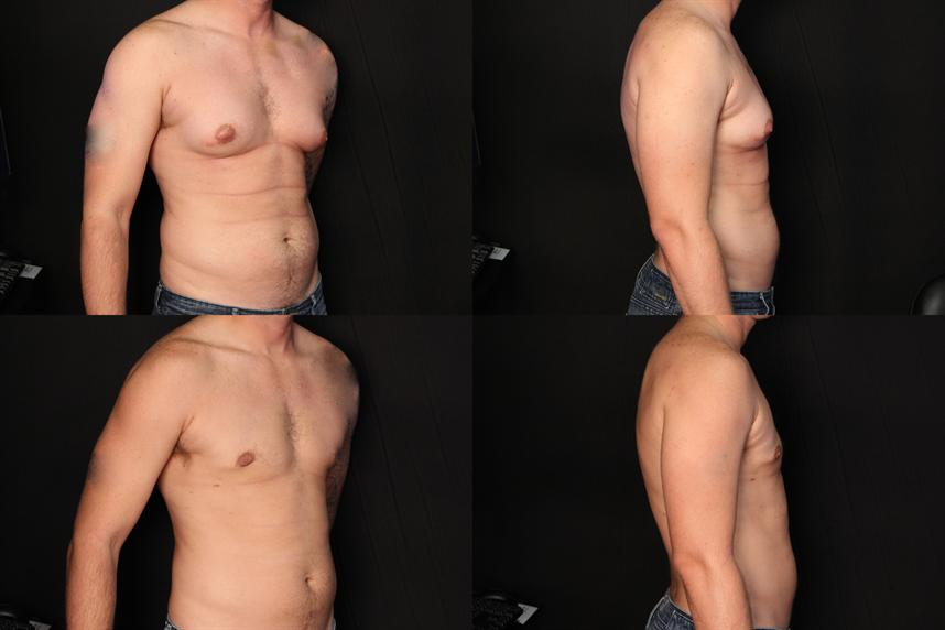 Male Breast Reduction For Pensacola Panama City Gynecomastia